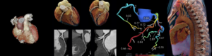 cardiac angiography